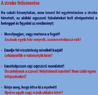 MBE módszer stroke felismerésére