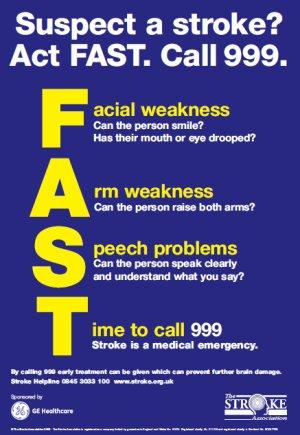 FAST módszer stroke felismerésére